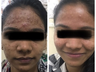 acne treatment in indore
