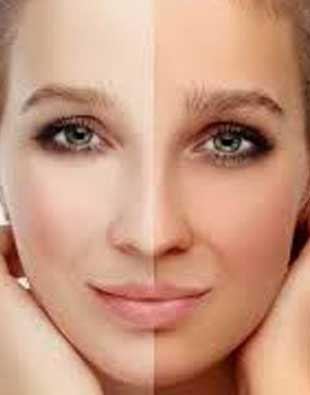 detaning treatment in Indore face dal treatment