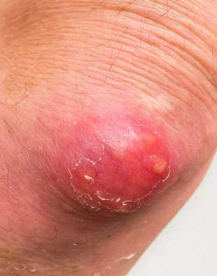 all skin disease treatment in Indore