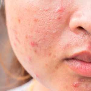 acne scar treatment in Indore acne treatment in Indore